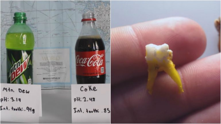 Mountain Dew vs Coca-Cola: Which Soda is Worse For Your Teeth