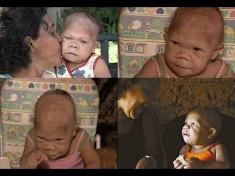 Case That Shocked The World….35 Year Old Brazilian Woman Looks Like a 9 Month Baby