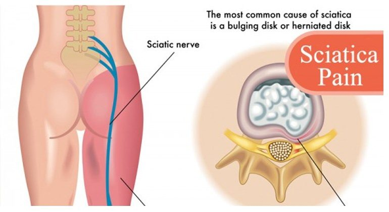 10 Tricks to Outsmart Sciatic Pain Without Taking Harmful Drugs and Painkillers