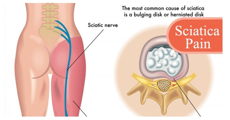 sciatic-pain