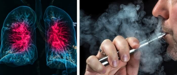 The Reason Why Doctors Urge People To Stop Using E-Cigs