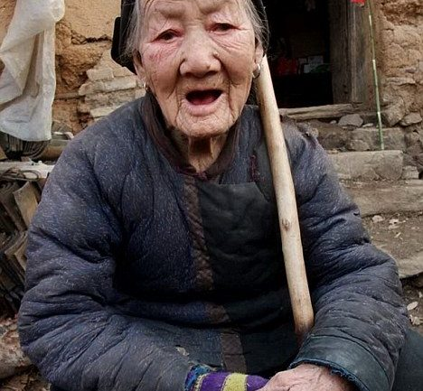 100-Year-Old Chinese Woman Grows Horn in Her Forehead