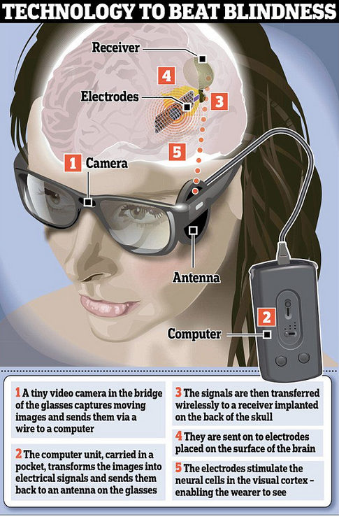 new-bionic-eye-implant-connects-directly-to-brain-allowing-blind-woman-to-see-shapes-colors-rt-viral
