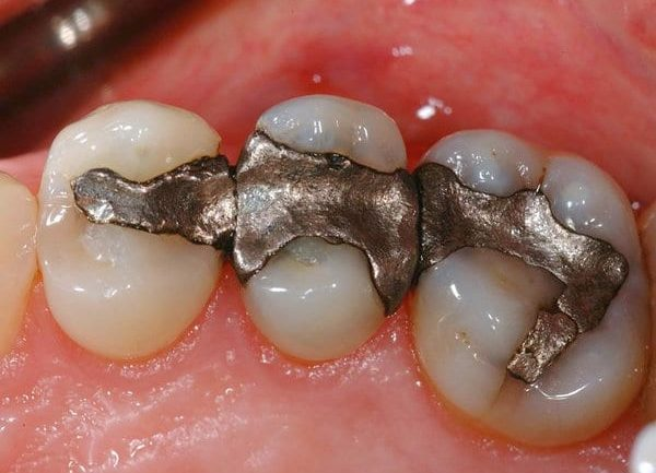 What You Need to Know Before Getting Your Amalgams or Root Canal Teeth Removed