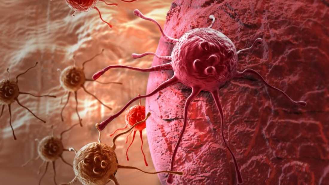 extra_large-1464386069-353-remarkable-breast-cancer-trial-destroys-tumors-in-just-11-days