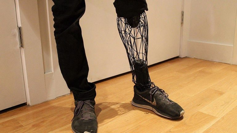 Incredible See Through Prosthetics 3D Printed From Titanium