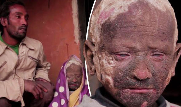 The Boy Slowly Turning Into STONE: Meet 11-Year-Old With Tragic Skin Condition That Makes Him A Statue