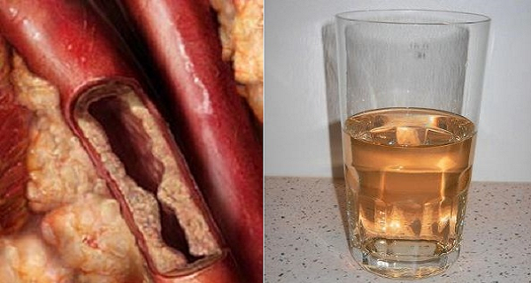 This Juice Unclogs Arteries and Protects Against Heart Disease