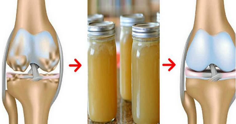 Doctors Are Amazed! This Recipe Strengthens and Restores Bones, Knees, and Joints