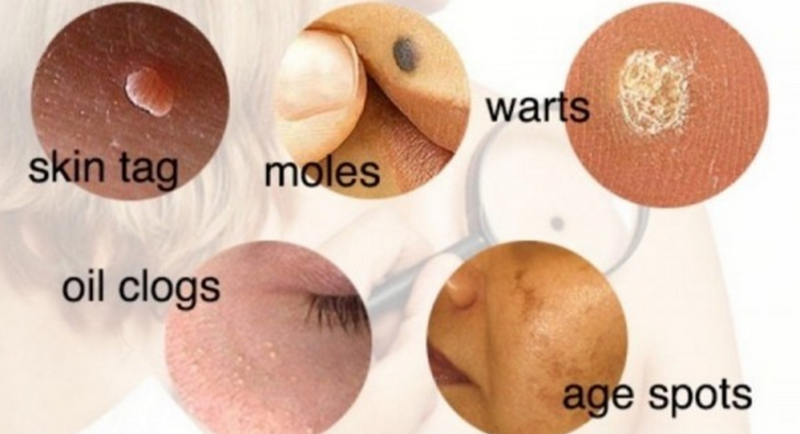 How To Remove Moles, Warts, Blackheads, Skin Tags, and Age Spots Completely Naturally