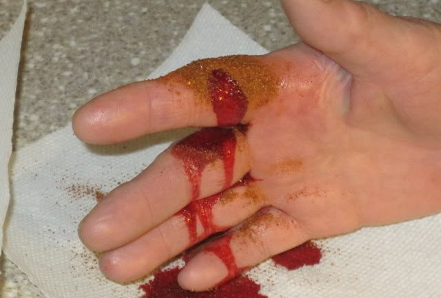 Best First Aid: Stop The Bleeding in 10 Seconds