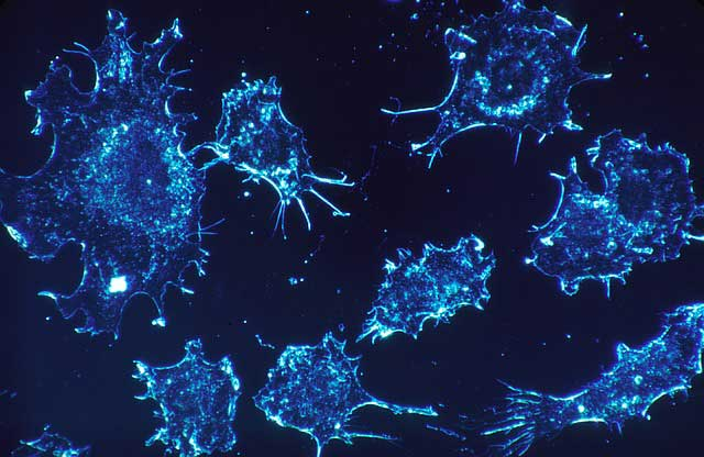 Spanish Scientists May Have Just Discovered A Cure For Cancer
