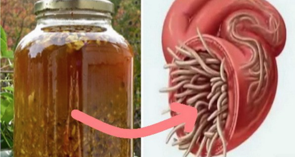 The Most Powerful Natural Antibiotic Ever, Which Cures Any Infection In The Body and Kills All Parasites