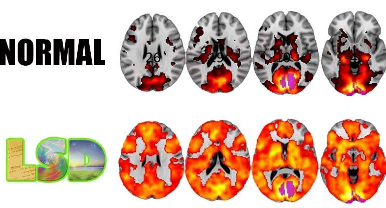 Scientists Just Took Images of The Brains of People on LSD and The Results Are Revolutionary