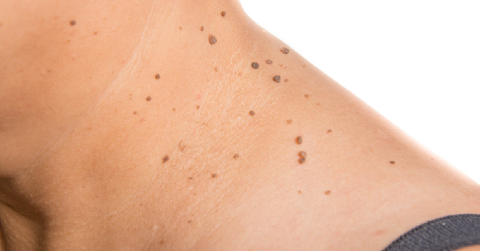 How To Remove Freckles Moles Naturally
