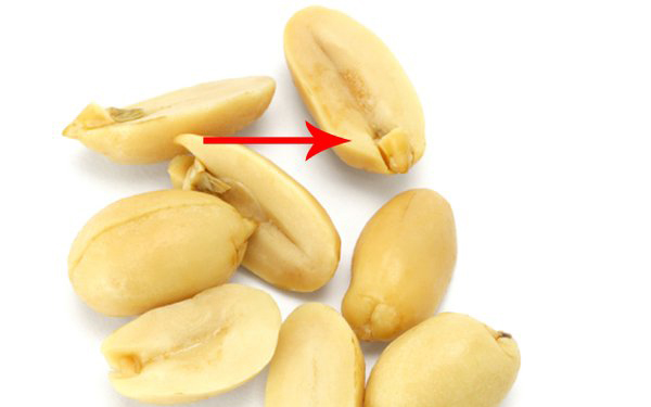 I Had No Idea That The Little Nub Inside A Peanut Is Actually Very Important