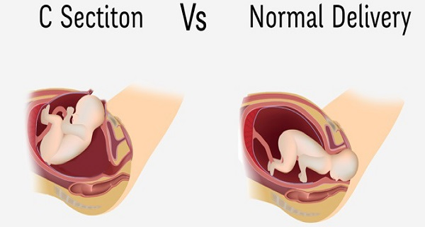 Why You Should Never Opt For A C-Section and The Dangers Of Having One