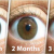 Natural Remedy For Cleaning Your Eyes And Improving Vision In Only 3 Months
