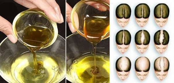 Massage Your Scalp With This Ayurvedic Oil, You Will Never Lose A Single Hair After This
