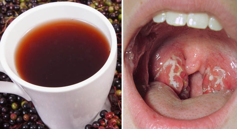10 Remedies That Defeat Strep Throat In No Time