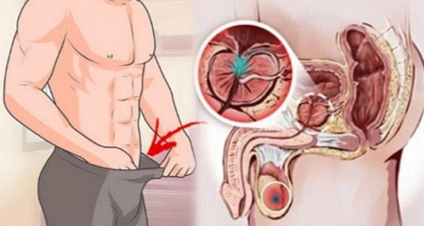 12 Early Warning Signs of Prostate Cancer That Every Guy Needs To Know