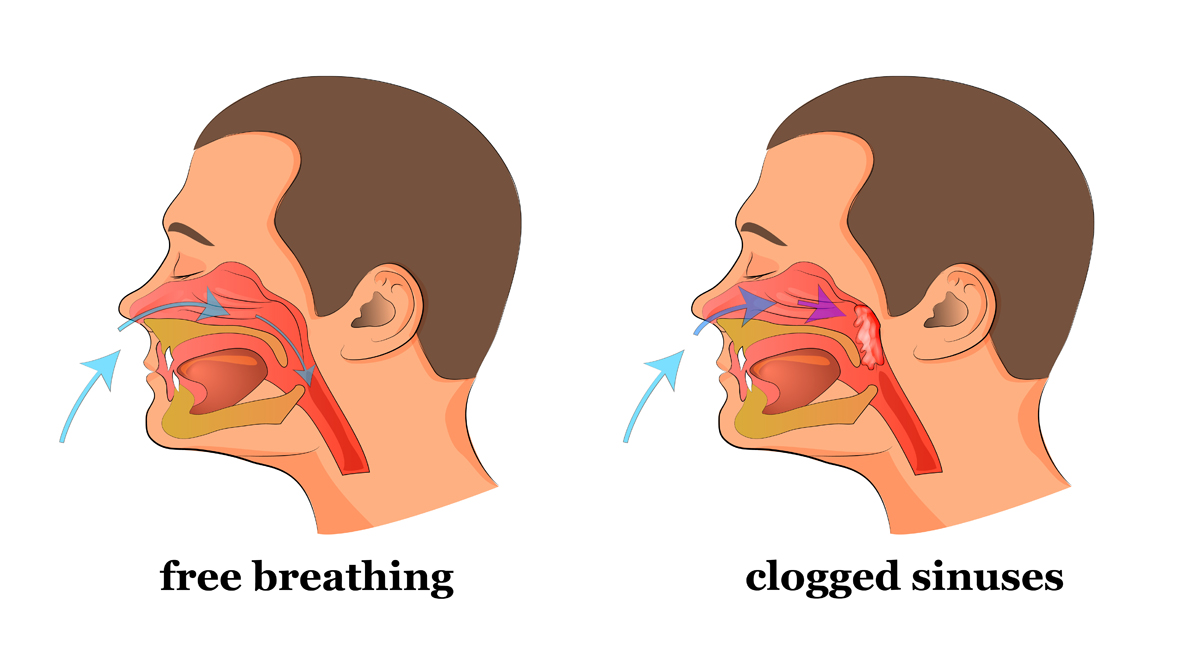 how to get a clear nose