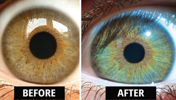 This Is How My Eyes Changed Colour After Eating Raw Vegan For 6 Years