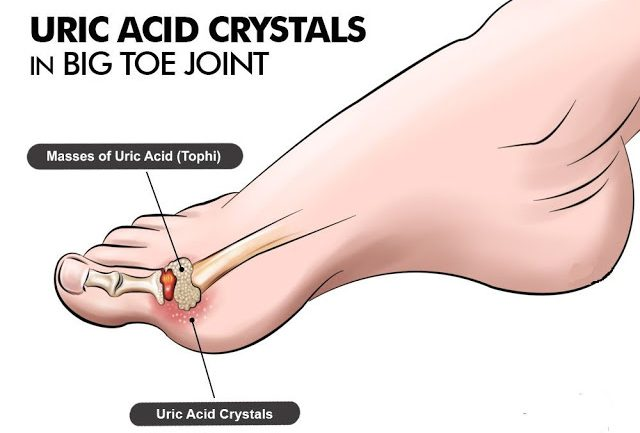 How To Control Uric Acid Levels and Avoid Gouty Arthritis, Kidney Stones and Renal Failure