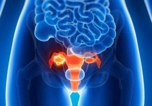 6 Commonly Missed Signs of Ovarian Cancer: The Silent Killer