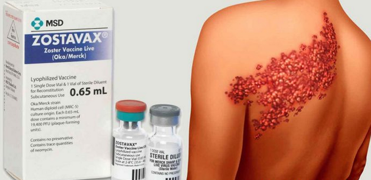 "Thousands Sue Merck For Shingles Vaccine ""Causing What It's Supposed To Prevent"""