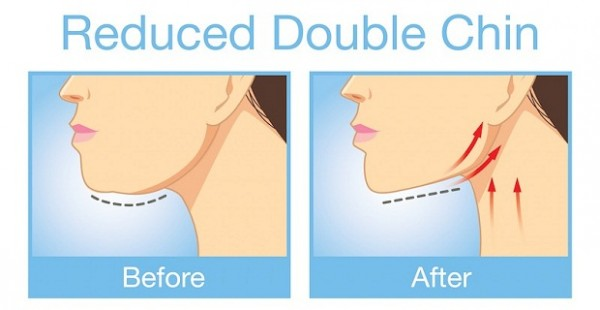 Best Exercises For Getting Rid Of That Unwanted Double Chin & Neck Fat