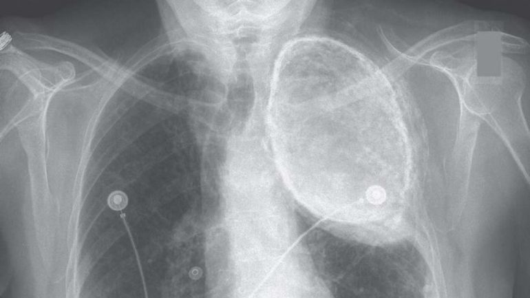 Why Has This Woman Had Oil In Her Lungs For Over 50 Years?