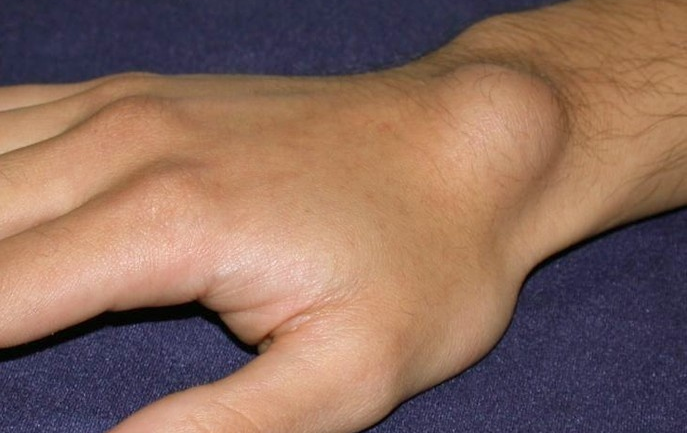 Lump On Your Wrist May Seem Like Nothing, But It Can Be An Indicator Of Something Serious