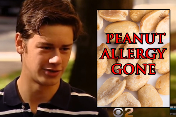 We Are Dealing With Nut Allergies All Wrong….16-Year-Old Got Rid of Peanut Allergy Thanks to This Groundbreaking Study