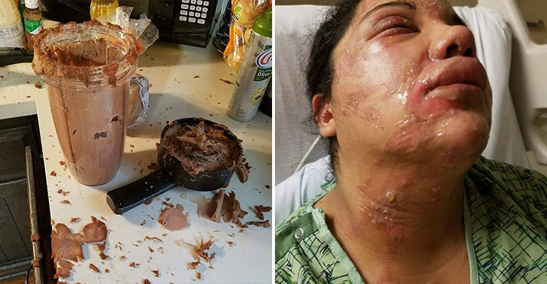 Woman Claims Her NutriBullet Exploded Leaving Her With Second Degree Burns