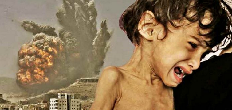 The US Is Aiding a Genocide By Mass Starvation In Yemen, Mainstream Media Silent