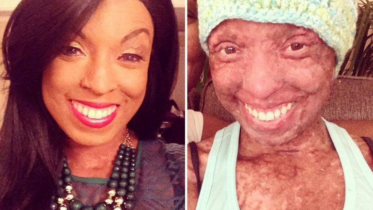 This Woman's Skin 'Melted Off' From Her Medication