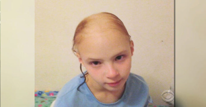 FDA States Alert After Little Girl Loses Clumps Of Her Hair From Using Popular Hair Product