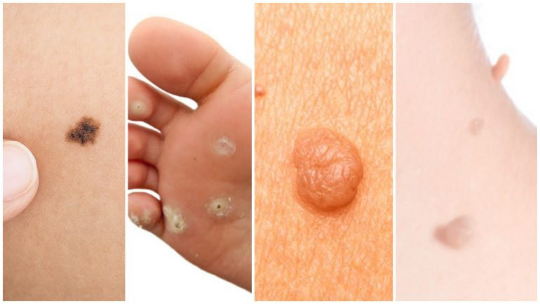 Complete Guide To Removing Warts, Moles, Skin Tags & Oil Clogs Naturally