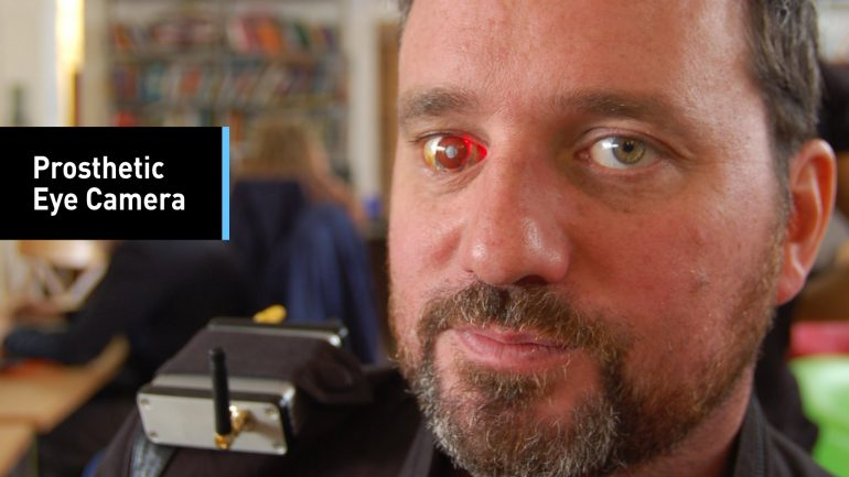 Meet The 'Eyeborg': The Man With A Camera Eye