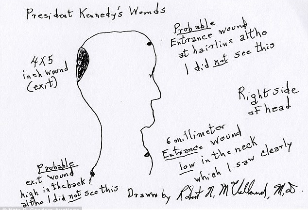 JFK Surgeon's Drawing Claims Assassinated President Was Shot Twice