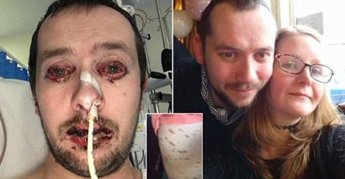 Man Goes To Bed Thinking He Has The 'Flu', Wakes Up Looking Like This