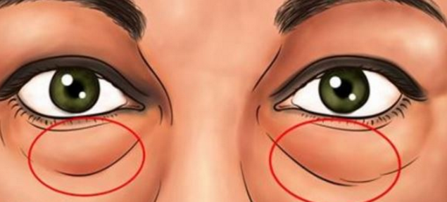 The Best Natural Treatments To Remove Dark Circles and Bags Under The Eyes