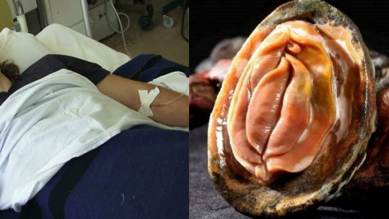 Desperate Man Accidentally Slices His Manhood After Trying To Make Love To a Fresh Oyster
