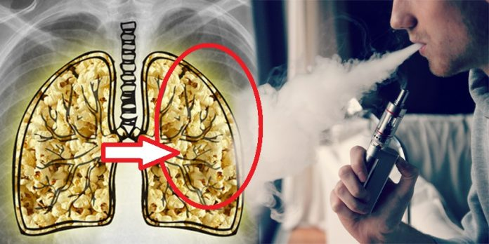 E-Cigarettes Cause A Horrible Incurable Disease Called 'POPCORN LUNG'. Worse Than Lung Cancer