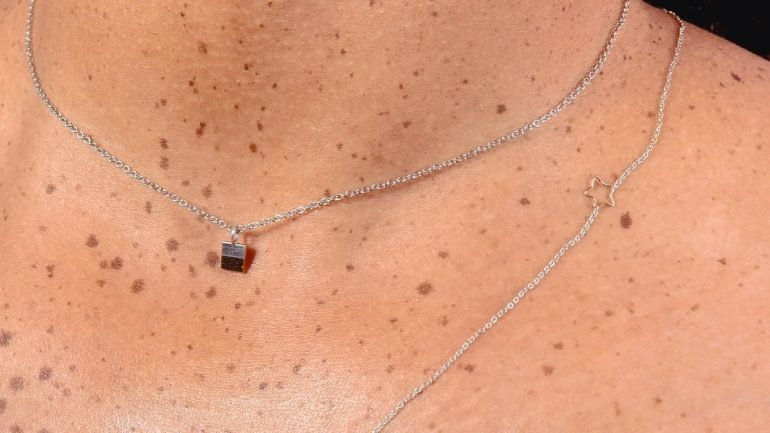 A Woman's Chest Freckles Turned Out To Be A Rare Sign Of Breast Cancer