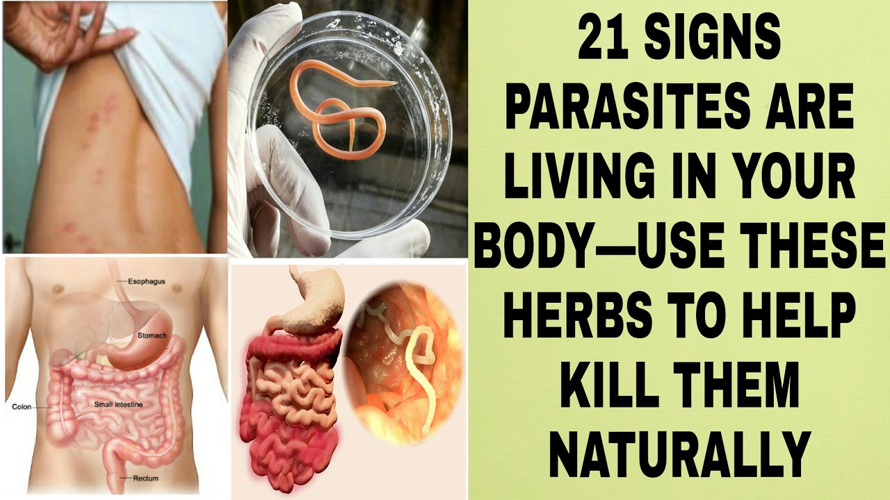 Do We Naturally Have Worms In Your Body