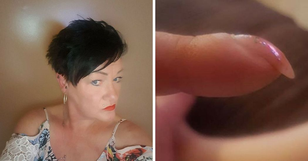 Woman Discovers She Has Cancer After Posting Picture of Her Nails On ...